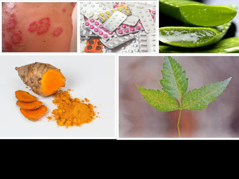 TOP 8 PLANTS PROVEN TO SOOTHE AND CURE YOUR SKIN DISEASE